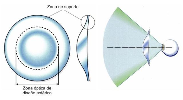 Lente asférica