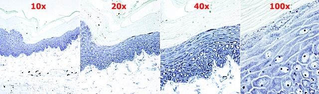 aumentos_microscopio