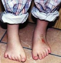 síndrome de Bardet-Biedl