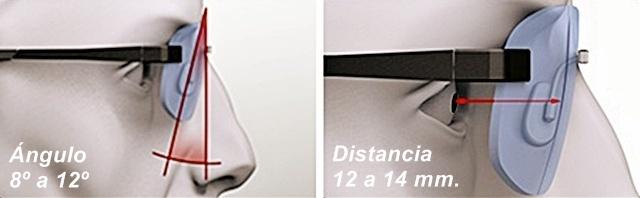 ángulo_ pastoscópico_distancia