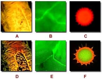 microscopía confocal_fluorescencia y de campo ancho